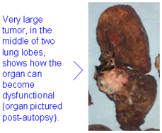 Very large tumor, in the middle of two lung lobes, shows how the organ can become dysfunctional.